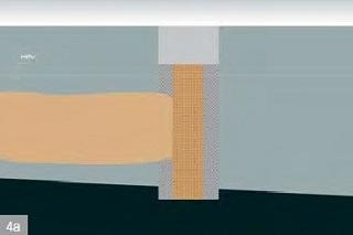 4a) vertikální řez